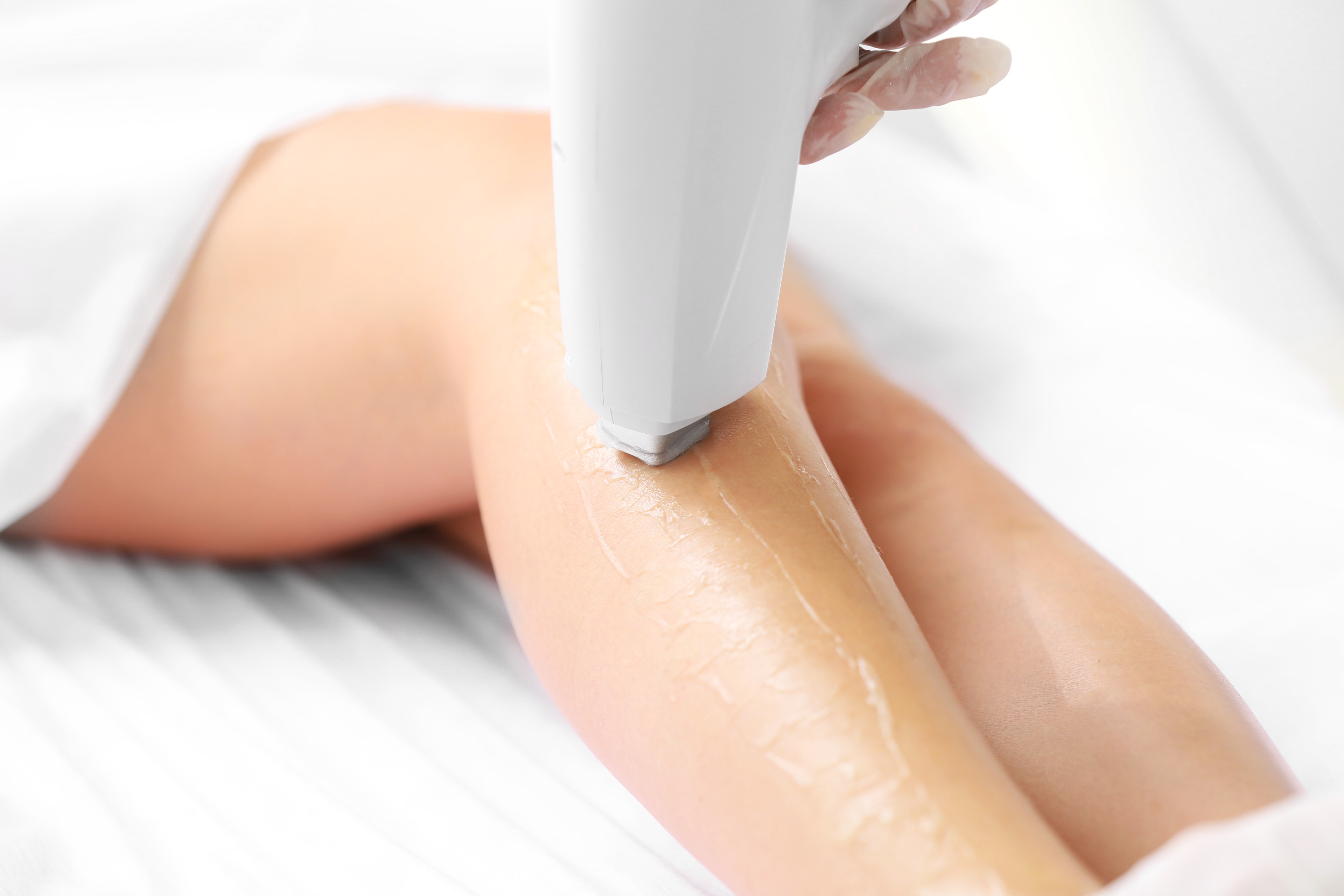 Everything You Have Ever Wanted to Know About Laser Hair Removal