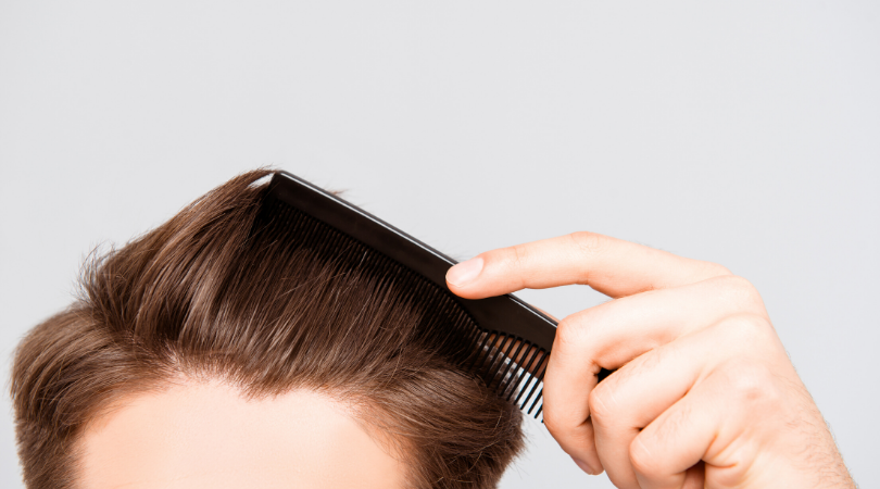 Hair Loss in Women and Men: Common Causes and Minimally-Invasive Treatment Options