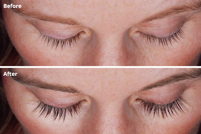ARE YOUR LASHES THINNING? 5 THINGS YOU NEED TO KNOW ABOUT LATISSE