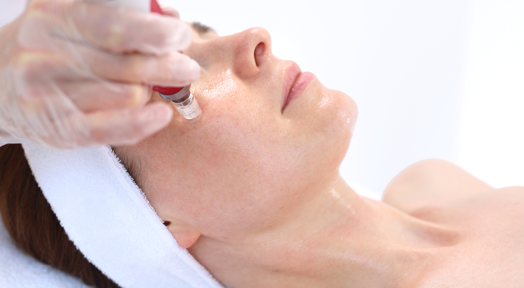 Brighten Your Complexion and Lighten Discolouration with Microneedling